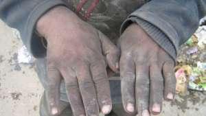تصاویری از سیهروزی و فلاکت مردم ما